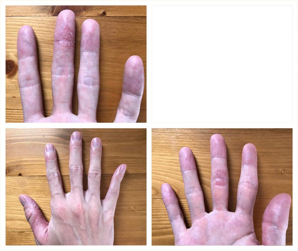 ローカカオパウダー摂取 約3週間後の状態(2019.07.20) 左手① 右手③④