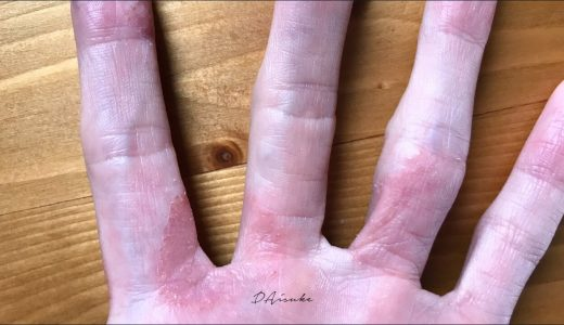 【体験記2】なぜ、手荒れの水疱が消えず指の湿疹が治らないのか?