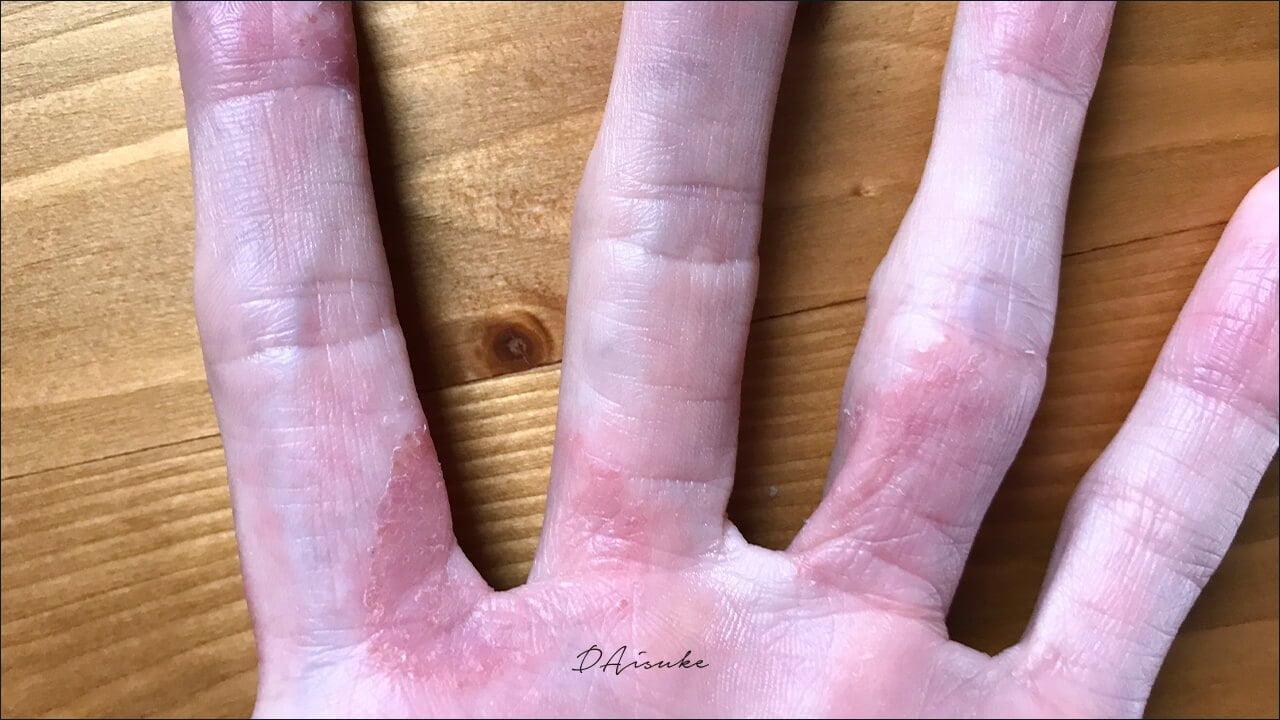 汗疱状湿疹 急激な悪化 最悪の状態