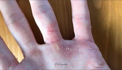 【体験記1】汗疱|手にぶつぶつした水疱ができて痒い。辛い。