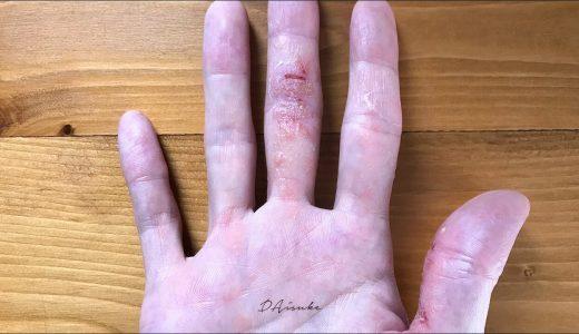 【体験記3】最終章|汗疱状湿疹。急激な悪化に伴い、最悪の状態に。