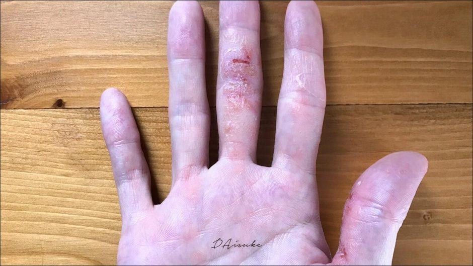 汗疱状湿疹