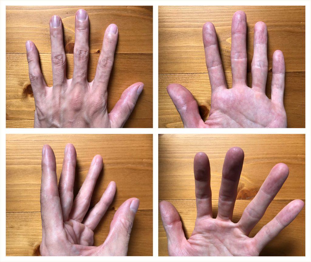 鉄成分を可能な限り排除した2ヶ月後の左手の状態(2019.09.16)