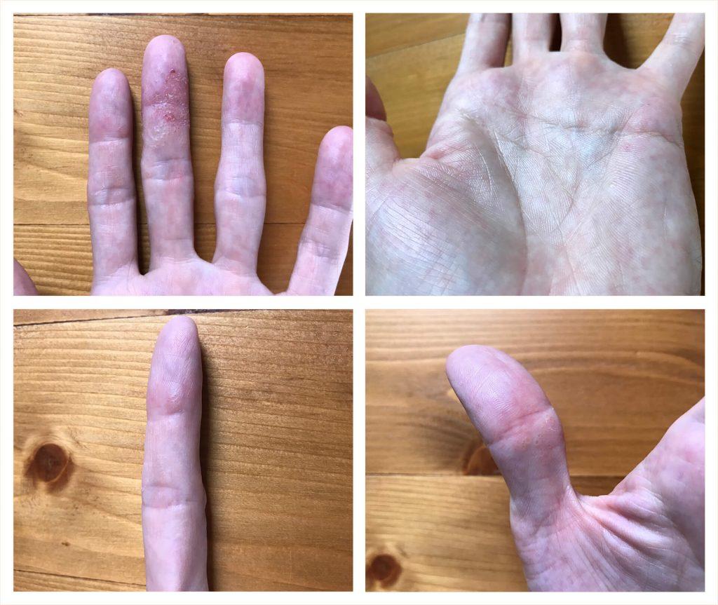 ローカカオパウダー摂取 左手の状態(2019.07.23)